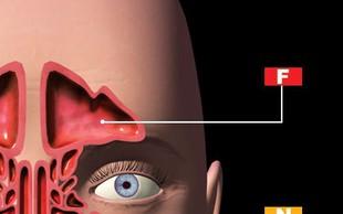 Dekodirajte simptome sinusov