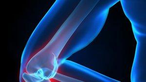 Tekaško koleno je eno od  najpogostejših poškodb pri tekačih.
