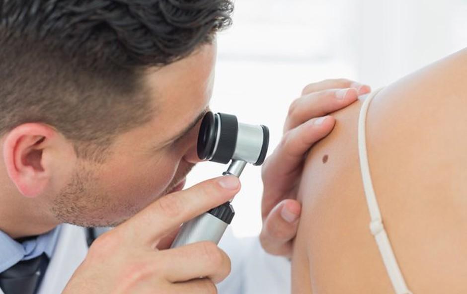 7 simptomov kožnega raka, ki jih zlahka spregledamo (foto: Profimedia)