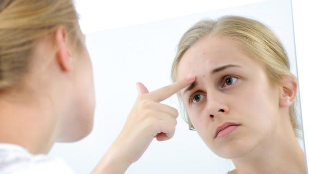 Najpogostejša vprašanja o mozoljih (foto: Shutterstock.com)