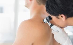 Evropski teden boja proti melanomu - letos posvečen moškim 50+