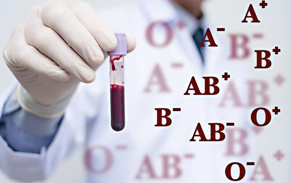 Krvna skupina: Kaj nam pove o našem zdravju (foto: Shutterstock)