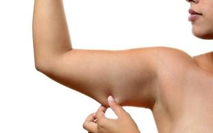 VIDEO: Najboljše vaje za izgubo maščobe na nadlahti (brez pripomočkov)