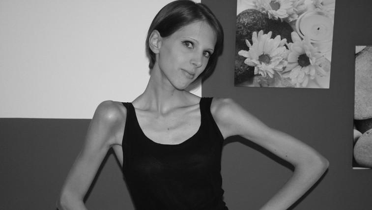 Špela Kranjec o 9-letnem boju z anoreksijo (foto: Arhiv www.notice-me.net)