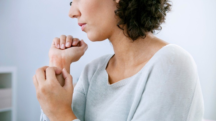 Ta kožni izpuščaj lahko povzroči stres! (foto: Profimedia)
